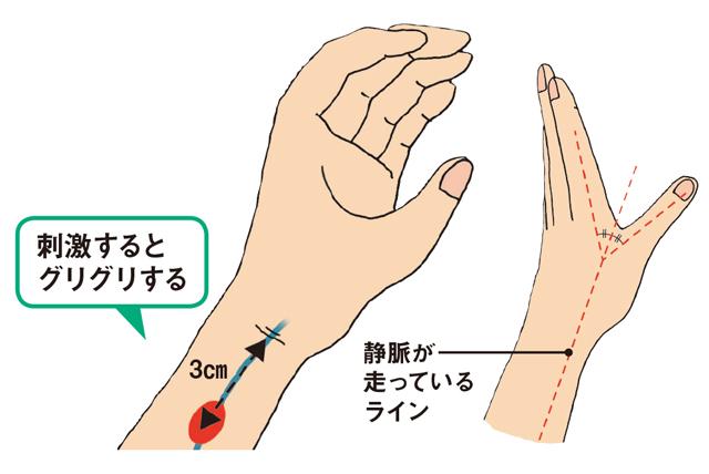 手首 親指 側 痛い