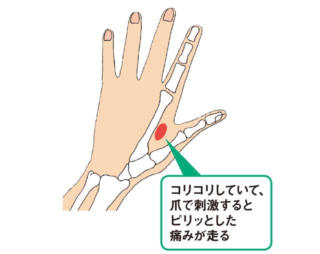 ふくらみ 手のひら 親指 の 痛い 付け根