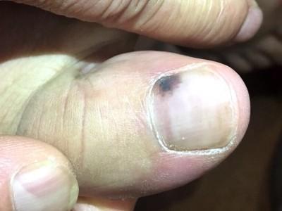 入る 爪 線 に 黒い が 爪に縦線が入ってきた? 気になる縦線、横線、爪の変化について
