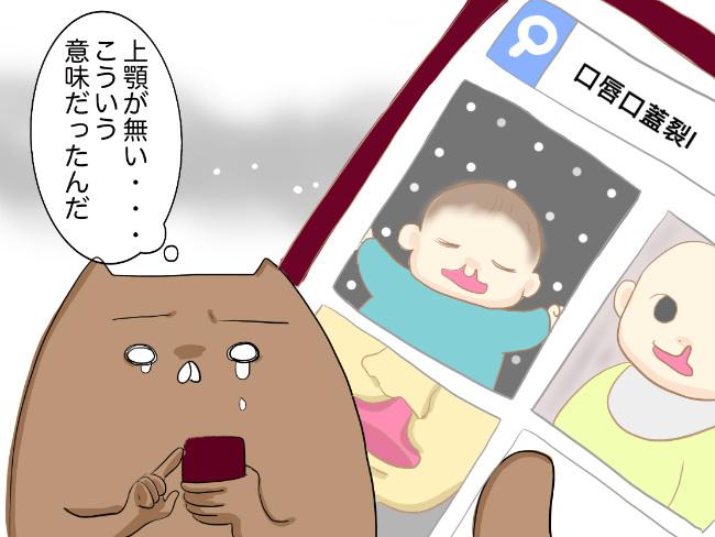0045248b45c3ed 検索結果にあらわれる、上唇が割れた赤ちゃんの写真の数々。一瞬、動揺はしましたが、赤ちゃんに起こっていることがわかり、少しずつ冷静さを取り戻しました。